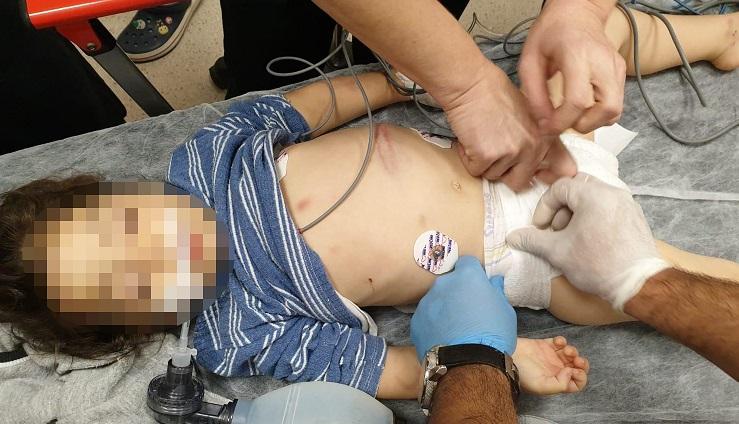 Üvey anne şiddeti, beyin kanamasına neden oldu