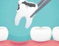 Soda diş minesini aşındırabilir