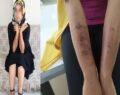 Lazer epilasyon genç kadının vücudunu yaktı