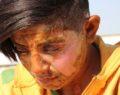 Genç kızın üzerine benzin döküp yaktı , yakalandı