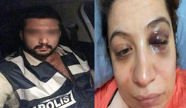 Eski eşi tarafından darp edilen kadın suç duyurusunda bulundu