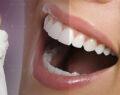 Ortodontik diş tedavisinde yeni yöntem